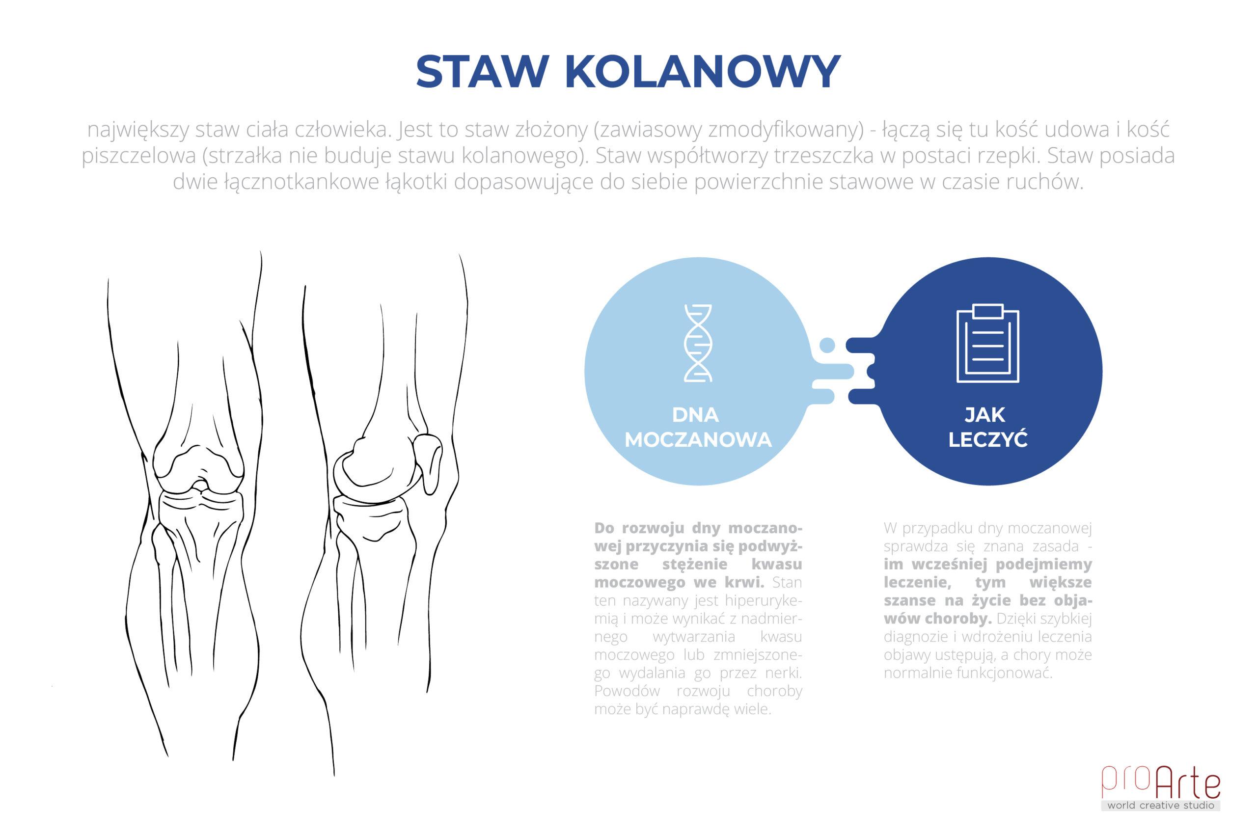 Staw_kolanowy_MD-01